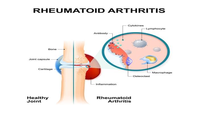 Ayurvedic view of the disease