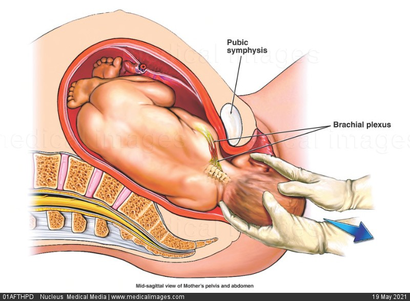 birth injury types