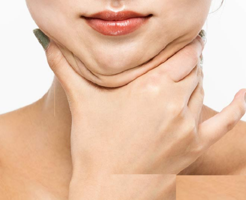 what causes a thick neck